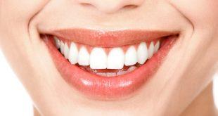 Tôi có nên lấy răng khôn ra nếu họ không làm phiền tôi không? 13