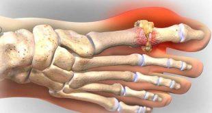 Điều trị gout là gì? 9